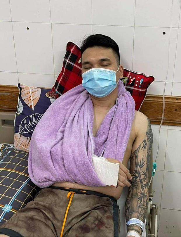 Khắc Việt nhập viện cấp cứu vì gãy tay, tạm thời cầm máu và bó nẹp chờ lên bàn mổ - Ảnh 2.