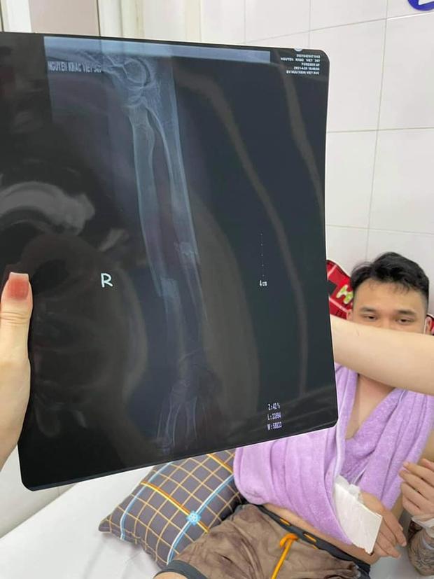 Khắc Việt nhập viện cấp cứu vì gãy tay, tạm thời cầm máu và bó nẹp chờ lên bàn mổ - Ảnh 3.