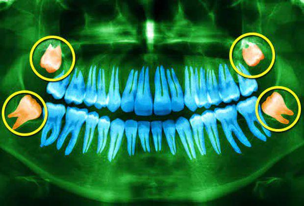 Răng khôn là gì mà khiến Phí Phương Anh ví như mối tình đầu làm mình đau? - Ảnh 2.