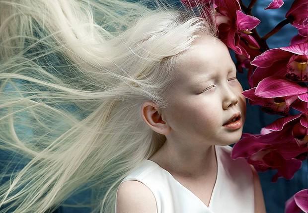 """9 em bé nổi tiếng khắp thế giới vì quá đỗi đặc biệt: Từ """"người sói"""", cô bé tóc hai màu đến """"công chúa tuyết"""" đẹp như bước ra từ cổ tích - Ảnh 1."""
