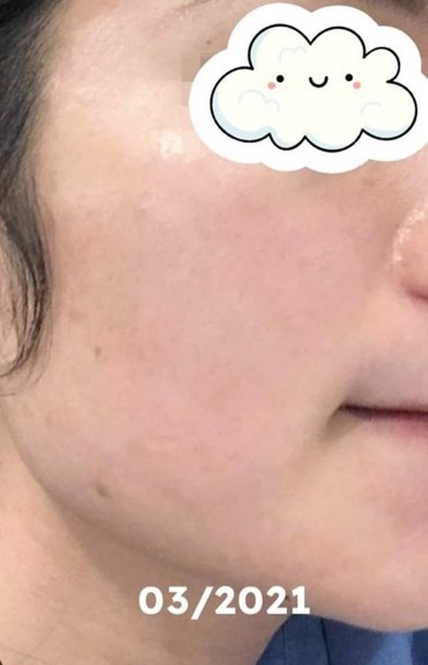 Từng nát mặt vì rượu thuốc, cô bạn này lấy lại làn da mịn màng sau 2 năm nhờ thay đổi hết đồ skincare - Ảnh 12.