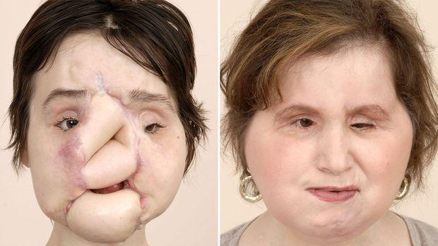 Nổ súng vào mặt hòng tự tử nhưng bất thành, cô gái xinh đẹp khiến khuôn mặt mình bị phá nát hoàn toàn và diện mạo sau 6 năm gây ngỡ ngàng  - Ảnh 7.