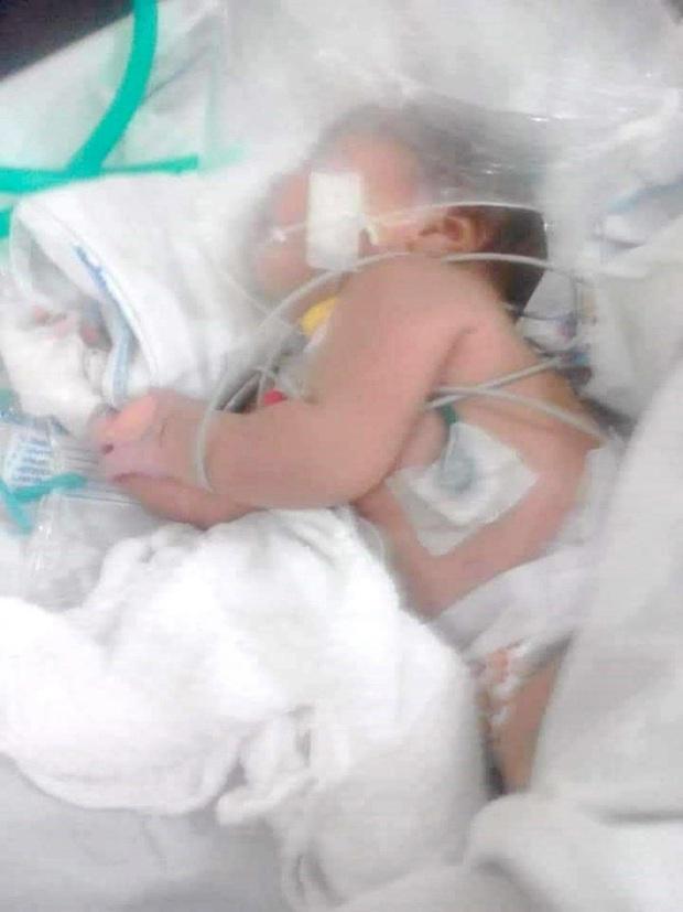 10 phút sau khi tắm thấy con gái 3 ngày tuổi sùi bọt mép, mẹ vội vàng đưa đi viện rồi sợ run người khi biết thủ phạm - Ảnh 3.