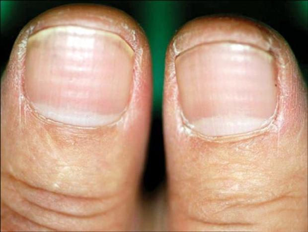 4 đặc điểm xuất hiện trên móng tay là dấu hiệu cảnh báo bệnh tiểu đường - Ảnh 3.