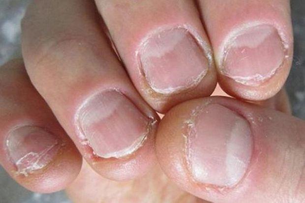 4 đặc điểm xuất hiện trên móng tay là dấu hiệu cảnh báo bệnh tiểu đường - Ảnh 4.