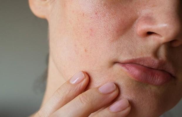Soi da thấy có 4 hiện tượng bất thường là dấu hiệu ngầm cảnh báo thận đang bị nhiễm độc - Ảnh 1.