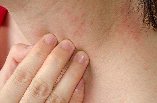 Soi da thấy có 4 hiện tượng bất thường là dấu hiệu ngầm cảnh báo thận đang bị nhiễm độc - Ảnh 3.