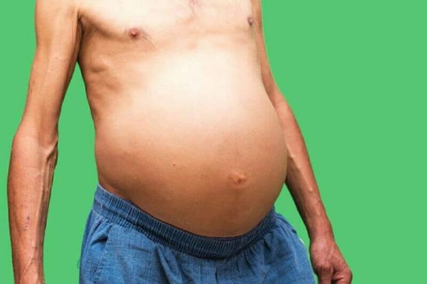 3 dấu hiệu ở bụng cho thấy nguy cơ mắc ung thư cao, nếu có cả thì bạn nên đi khám ngay - Ảnh 2.