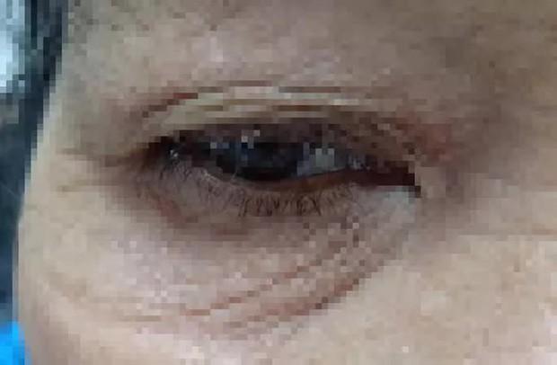 Người phụ nữ bị rận đẻ trứng đầy mi mắt - Ảnh 1.