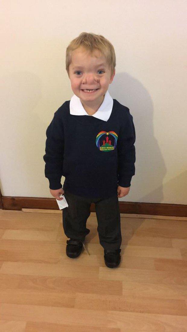 """Cậu bé Pinocchio đời thực"""" sinh ra với chiếc mũi to dị dạng khiến bố mẹ cũng sốc, gây bất ngờ với diện mạo sau ít năm - Ảnh 7."""