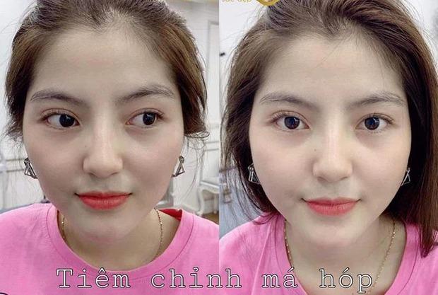 Xôn xao ảnh bạn gái tin đồn của Quang Hải đi chỉnh sửa nhan sắc, gương mặt before gây chú ý - Ảnh 3.