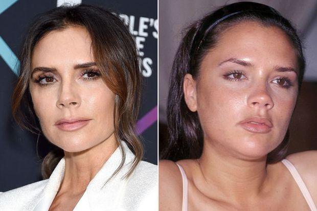 Sự tích sao nữ Hollywood dao kéo: Cardi B biến chứng kinh dị, Victoria Beckham bơm đủ đường, Kylie sửa 1 điểm mà lột xác - Ảnh 21.