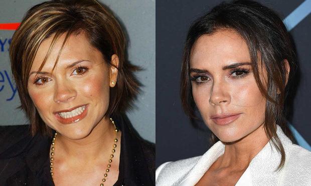 Sự tích sao nữ Hollywood dao kéo: Cardi B biến chứng kinh dị, Victoria Beckham bơm đủ đường, Kylie sửa 1 điểm mà lột xác - Ảnh 22.