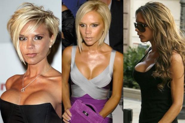 Sự tích sao nữ Hollywood dao kéo: Cardi B biến chứng kinh dị, Victoria Beckham bơm đủ đường, Kylie sửa 1 điểm mà lột xác - Ảnh 25.