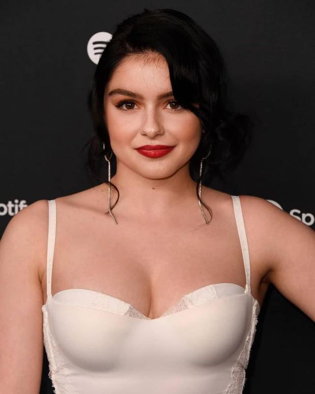 Sự tích sao nữ Hollywood dao kéo: Cardi B biến chứng kinh dị, Victoria Beckham bơm đủ đường, Kylie sửa 1 điểm mà lột xác - Ảnh 40.