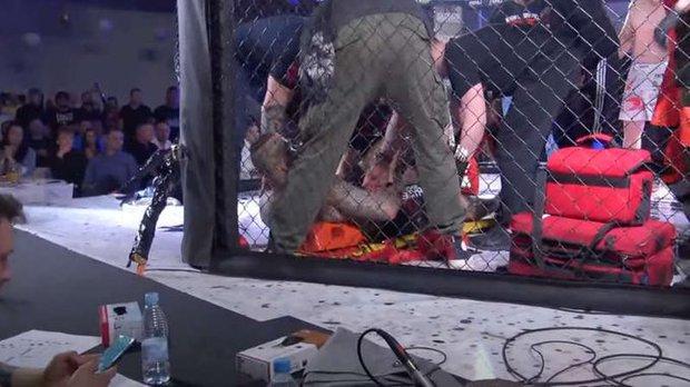Võ sĩ gãy gập chân kinh hoàng sau nỗ lực tấn công đối thủ - Ảnh 2.