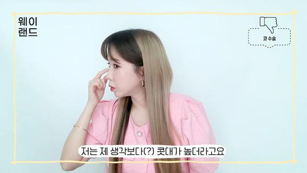 3 kiểu phẫu thuật thẩm mỹ khiến idol Hàn hối hận nhất sau khi thực hiện: Từ nâng mũi đến cắt mí đều phải cẩn trọng - Ảnh 4.