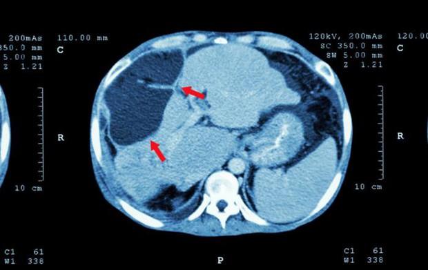 Người đàn ông đau vai suốt 1 năm được chẩn đoán mắc ung thư gan, bác sĩ chỉ ra 2 thói quen là thủ phạm mà nhiều người mắc phải - Ảnh 2.