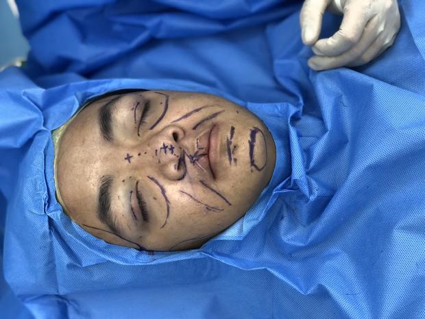 Gen Z Hà Tĩnh có khuôn mặt ông cụ sau phẫu thuật thẩm mỹ: Biến đổi kinh ngạc đến mức khiến bố đẻ bật khóc - Ảnh 3.