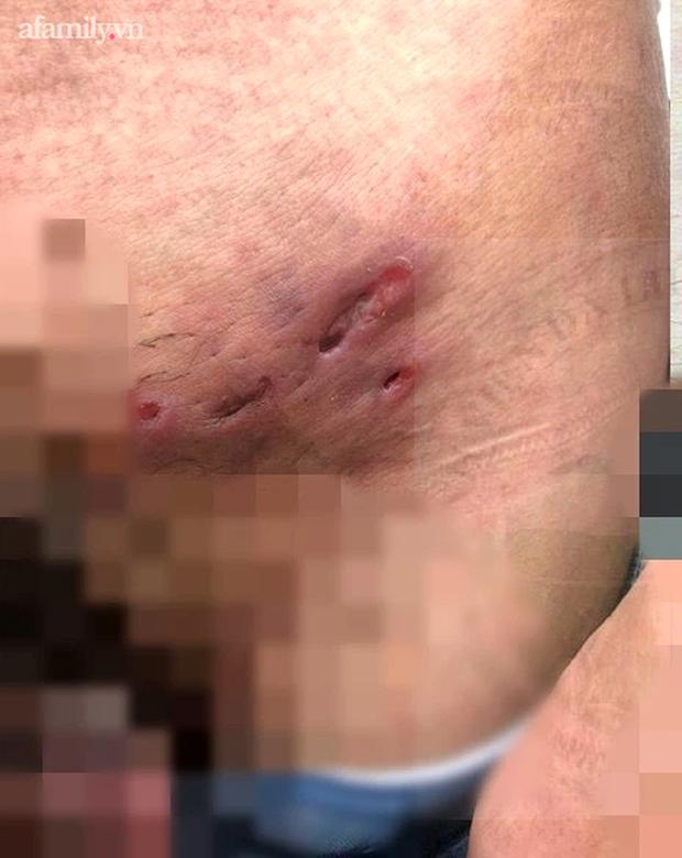 Quan hệ tình dục với nhiều bạn tình, nam thanh niên 28 tuổi nhiễm cùng lúc giang mai và căn bệnh hột xoài hiếm gặp - Ảnh 2.