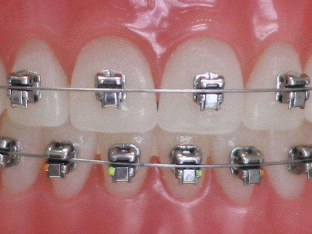 Nhà nhà người người đi niềng răng nhưng liệu phương pháp nào mới là dành cho bạn? - Ảnh 3.