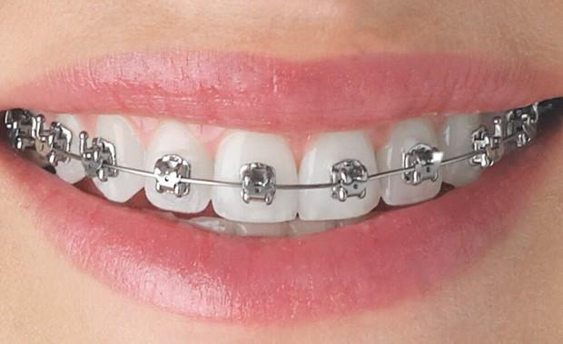 Nhà nhà người người đi niềng răng nhưng liệu phương pháp nào mới là dành cho bạn? - Ảnh 4.
