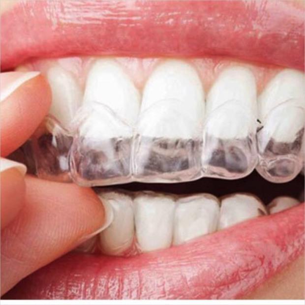 Nhà nhà người người đi niềng răng nhưng liệu phương pháp nào mới là dành cho bạn? - Ảnh 8.