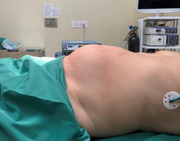 Bị khối u nặng 4kg chèn ép nội tạng vì tự chữa u xơ tử cung bằng thuốc Nam - Ảnh 1.