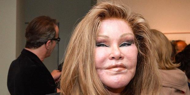 """Nữ tỷ phú bỏ núi tiền phẫu thuật giống mặt mèo để giữ chồng, cuối cùng nhận về """"danh hiệu"""" biểu tượng thảm họa thẩm mỹ và kết cục cay đắng - Ảnh 4."""