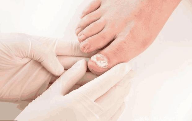 Bất kể là nam hay nữ, 4 triệu chứng bất thường xuất hiện trên bàn chân cho thấy bệnh tiểu đường đang nhắm tới bạn - Ảnh 4.
