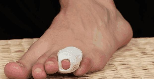 Bất kể là nam hay nữ, 4 triệu chứng bất thường xuất hiện trên bàn chân cho thấy bệnh tiểu đường đang nhắm tới bạn - Ảnh 2.