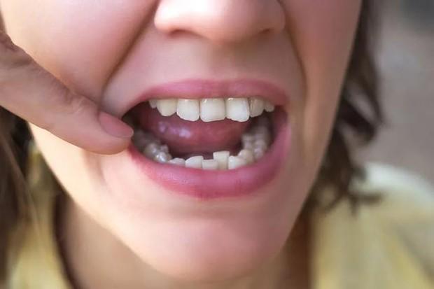 Thường xuyên cắn vào lưỡi khi ăn, nếu không mắc 3 thói quen xấu sau thì hãy dè chừng với 3 căn bệnh nguy hiểm, 1 trong số đó là đột quỵ - Ảnh 4.