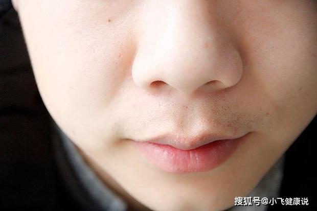 3 dấu hiệu quanh miệng cho thấy nữ giới đang mắc bệnh phụ khoa, nếu không có cái nào nghĩa là cơ thể bạn đang rất khỏe mạnh - Ảnh 3.