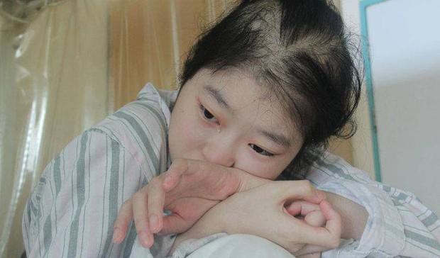 Cô gái 18 tuổi mất nửa dạ dày, sống nhờ thức ăn dạng lỏng suốt đời vì thường xuyên ăn loại rau nhiều người thích - Ảnh 1.