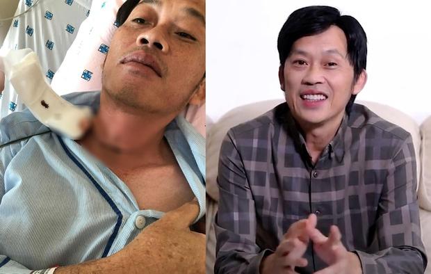 Netizen bênh vực NS Hoài Linh, chỉ ra lý do chậm trễ từ thiện: Chú là con người, cũng cần có thời gian lành lại những vết thương lòng - Ảnh 6.