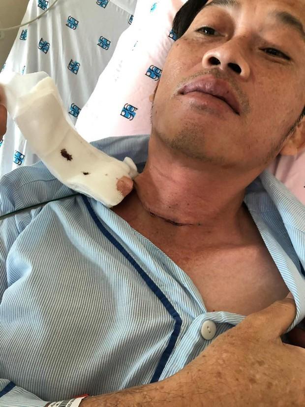 NÓNG: Nghệ sĩ Hoài Linh phẫu thuật tuyến giáp cách đây vài tháng - Ảnh 2.