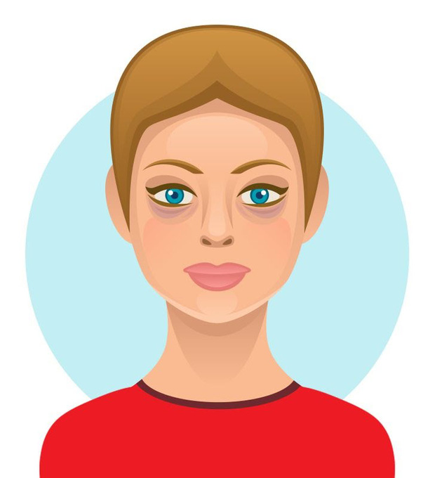 6 loại thực phẩm ngon miệng nhưng hại da, có thể khiến bạn trở nên xấu xí với nhiều mụn và thâm sạm - Ảnh 1.