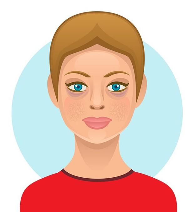 6 loại thực phẩm ngon miệng nhưng hại da, có thể khiến bạn trở nên xấu xí với nhiều mụn và thâm sạm - Ảnh 2.