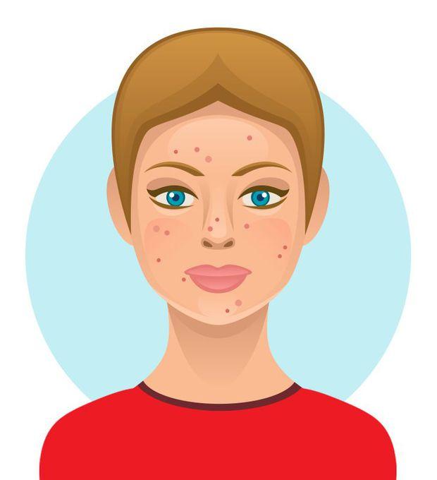 6 loại thực phẩm ngon miệng nhưng hại da, có thể khiến bạn trở nên xấu xí với nhiều mụn và thâm sạm - Ảnh 3.