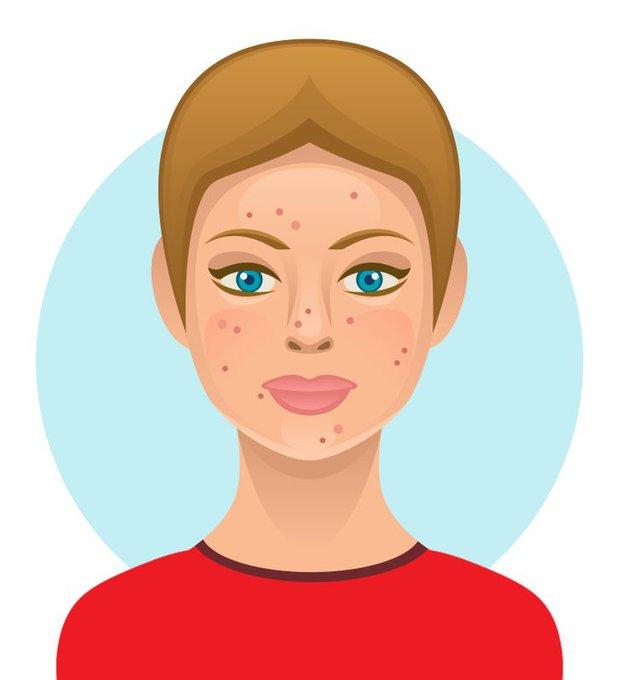6 loại thực phẩm ngon miệng nhưng hại da, có thể khiến bạn trở nên xấu xí với nhiều mụn và thâm sạm - Ảnh 4.
