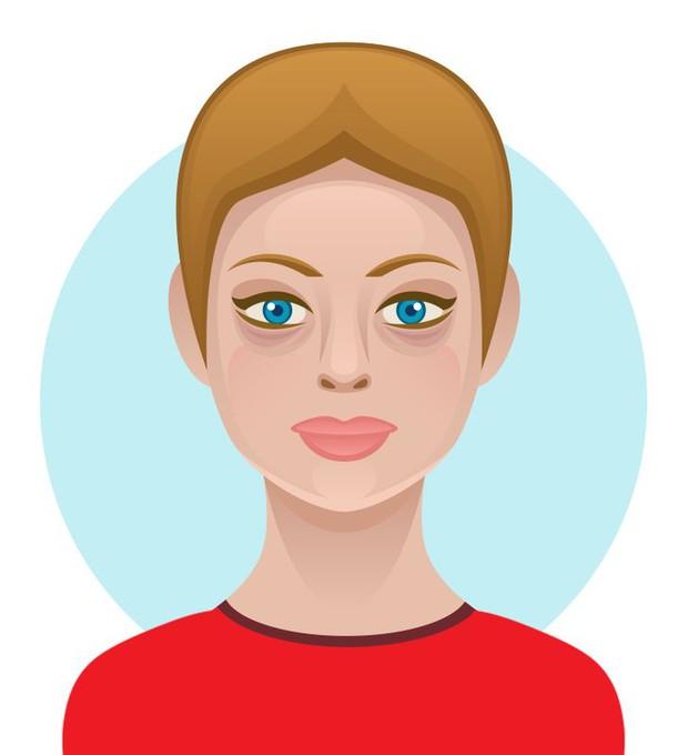 6 loại thực phẩm ngon miệng nhưng hại da, có thể khiến bạn trở nên xấu xí với nhiều mụn và thâm sạm - Ảnh 6.