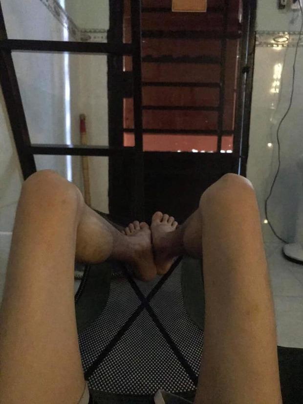 Xót xa với hình ảnh đôi chân chỉ còn da bọc xương của Hoàng Phúc (Cười Xuyên Việt) trước khi qua đời - Ảnh 3.