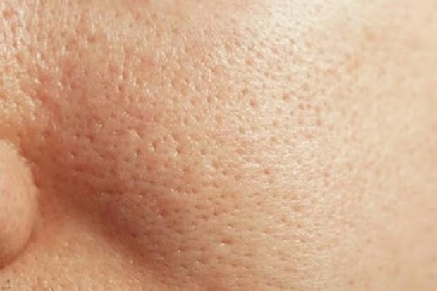 Cải thiện lỗ chân lông to: 5 điều nhất định phải làm để da dẻ láng mịn không còn vết tích - Ảnh 1.