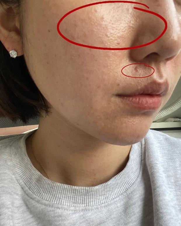 Cải thiện lỗ chân lông to: 5 điều nhất định phải làm để da dẻ láng mịn không còn vết tích - Ảnh 2.
