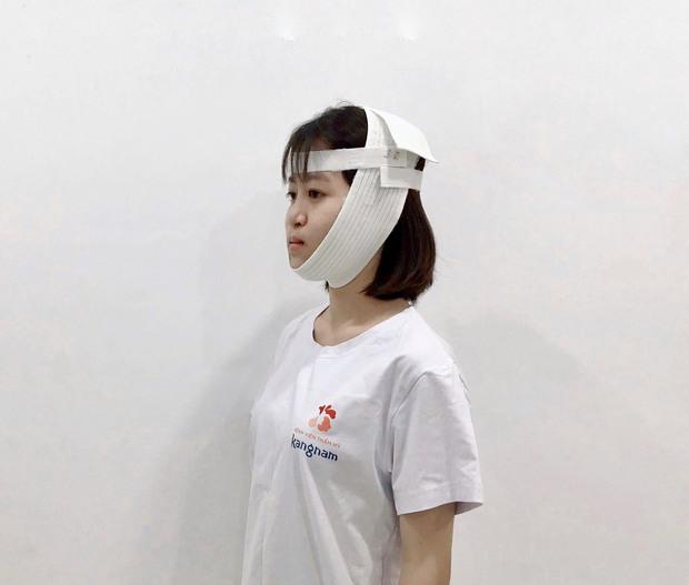 4 tháng sau những cuộc phẫu thuật thẩm mỹ sinh tử, cô gái miệng hứng mưa khiến cả nhà bật khóc vì lột xác đáng kinh ngạc - Ảnh 3.