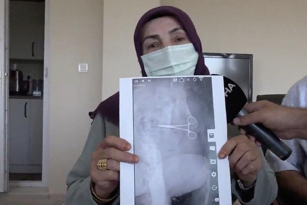 Đau bụng dữ dội không khỏi, bà mẹ 7 con đến bệnh viện thăm khám rồi xanh mặt khi biết nguyên nhân hãi hùng - Ảnh 3.