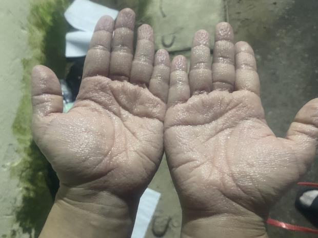 """Chuyện về những đôi bàn tay, bàn chân trắng bệch vì """"ngâm mồ hôi"""" của y bác sĩ nơi tuyến đầu - Ảnh 5."""