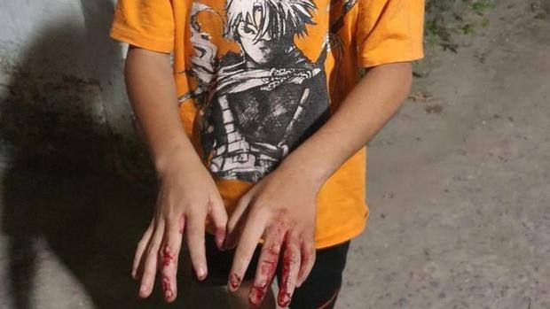 Chủ tịch nước yêu cầu TP.HCM làm rõ vụ trẻ em bị bạo hành - Ảnh 1.