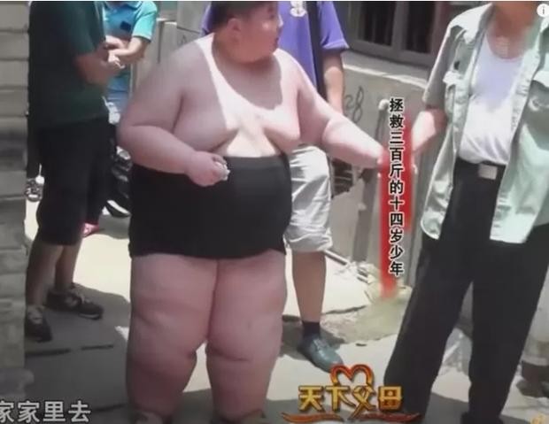 14 tuổi nặng 180kg, cậu nhóc ăn gấp 7 lần người bình thường, phụ huynh phải lên YouTube cầu viện cứu trợ - Ảnh 4.