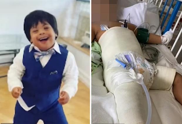 Bé trai 3 tuổi mắc hội chứng Down rơi từ tầng 5 xuống đất gây xôn xao cả khu phố, cảnh sát cũng vào cuộc điều tra - Ảnh 4.